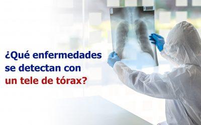 ¿Qué enfermedades se detectan con un tele de tórax?